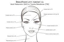 Doctor Viviana Iordache - Acid Hialuronic